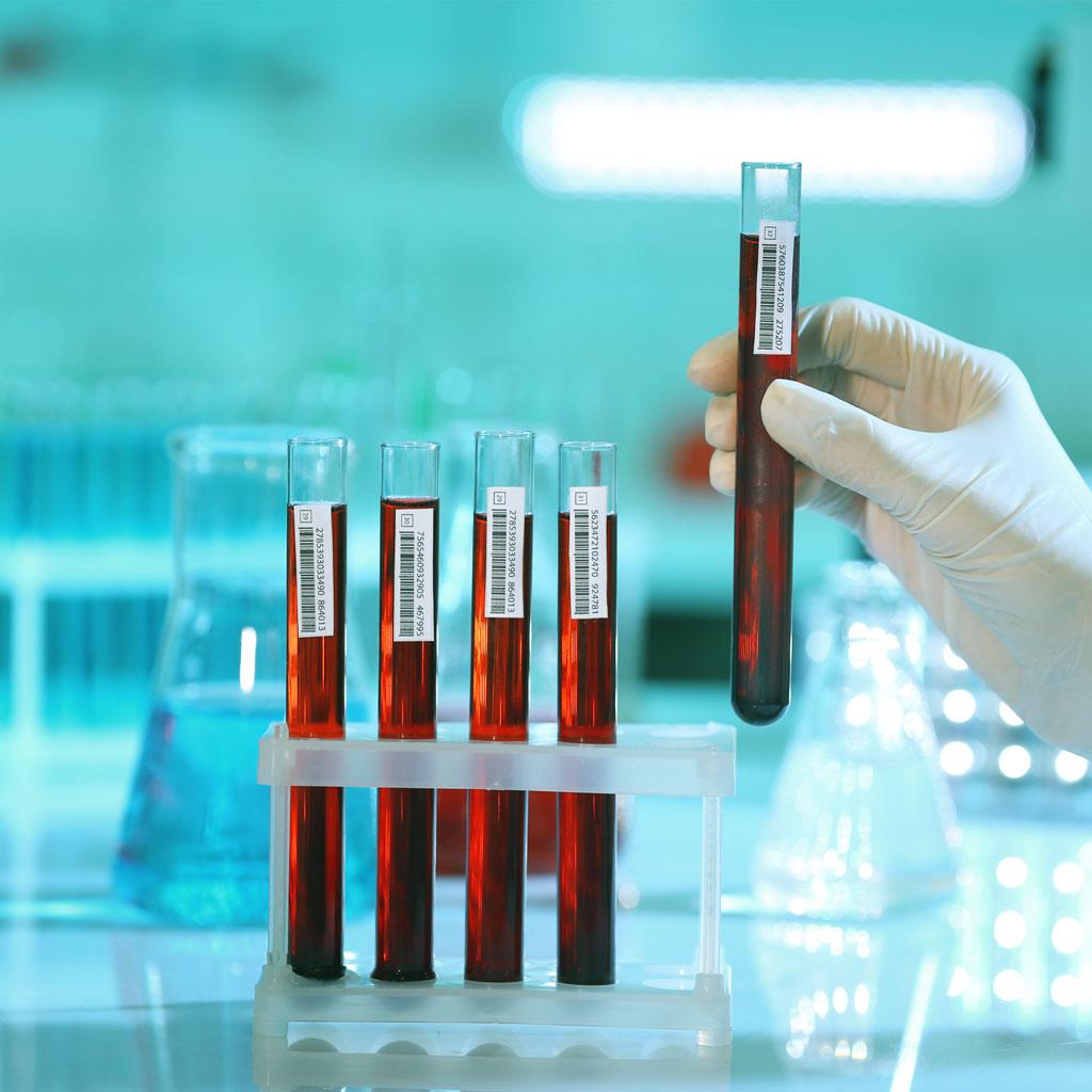 smartlife-cenegenics-metabolic-tests-london